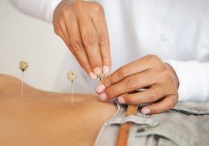 acupuncture Orlando helps