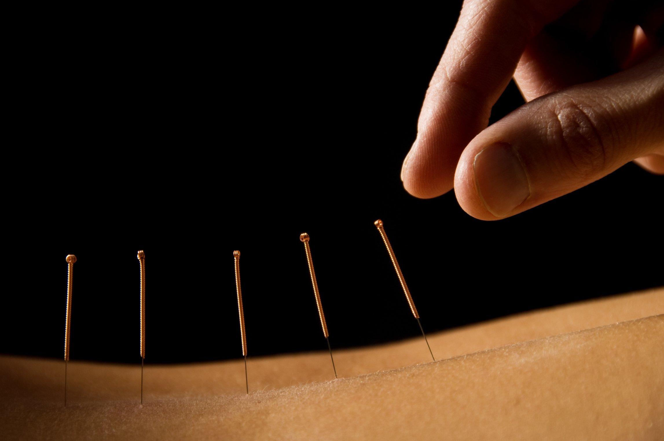 Yin acupuncture orlando