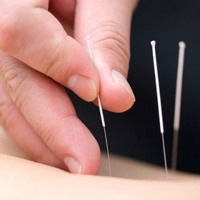 Orlando Acupuncture
